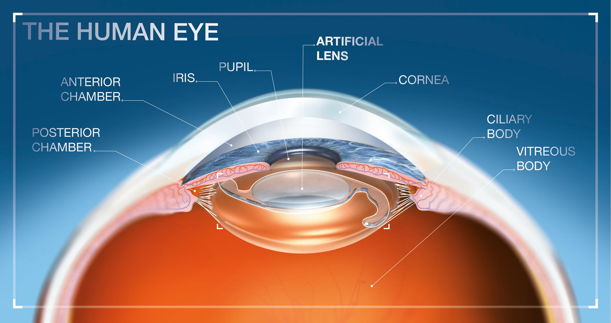 eye lens implants